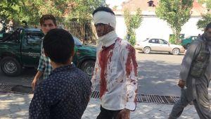 Kolme miestä kadulla, yhdellä on verinen paita.