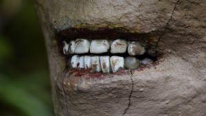 Tekohampaat Patsaspuiston patsaan suussa