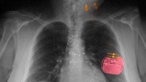 Vagushermo rauhoittaa sydäntä ja mieltä – miksi? Voiko vagushermoa stimuloida ja hoitaa sairauksia?