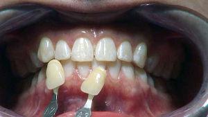 hampaan valkaisu