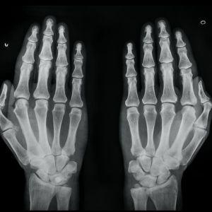 Juha Suonpään isoisän kädet röntgenkuvassa.
