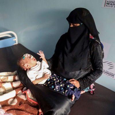 En kvinna i hajib håller ett gråtande undernärt barn i famnen