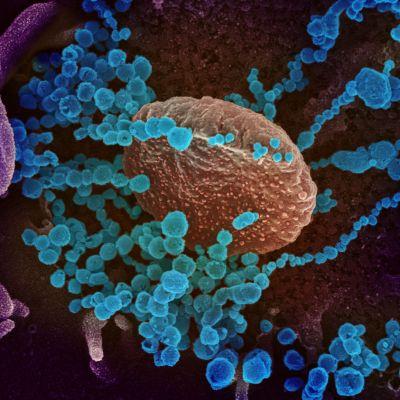 Koronavirus elektronimikroskooppikuvassa.