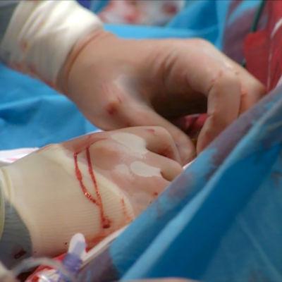 Sydänoperaatio