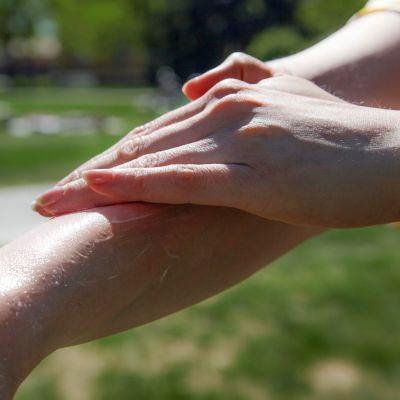 Aurinkovoidetta levitetään käsivarrelle.