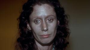 Rosemary Jacobs på 1970-talet innan en läkare skalade av huden i hennes ansikte.