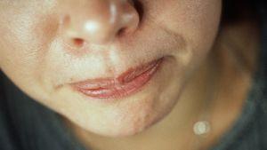 Tandgnissling beror ofta på stress. Bild: YLE/Jyrki Lyytikkä