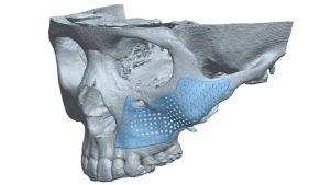 Syöpä yläleuassa. tietokonemallinnus potilaan implantista.