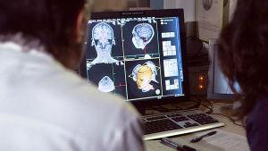 Tutkijat katsovat aivoja eri kulmista tietokoneen näytöltä