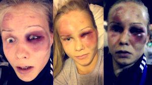 Kolmen kuvan kollaasi Petra Ollin kasvoista, joissa pahan näköisiä mustelmia ja kuhmuja.