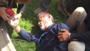 En skadad man ligger på gräsmatta och får hjälp.