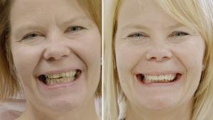 Tuhkimotarinoiden Eijan hampaat ennen ja jälkeen