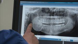 En tandläkare granskar en panoramabild.