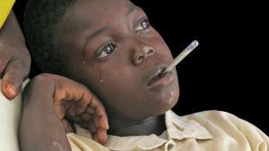 Malariaan sairastunut poika odottaa hoitoa Otashin pakolaisleirillä Etelä-Darfurissa Sudanissa.