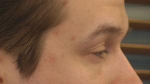 Närbild på öga som blinkar