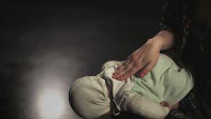 Vauvaa lyödään lapaluiden väliin hengitystukkeen poistamiseksi.