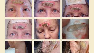 Mustan salvan aiheuttamaa ihovauriota naisen kasvoissa.