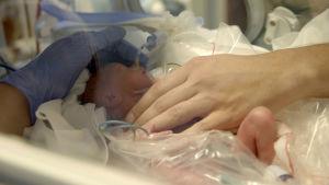 Keskosvauva syntyi viikolla 25.