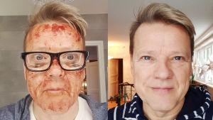 Risto Kuusisto kuvassa juuri kasvohoidon jälkeen ja myöhemmin ihon parannuttua.