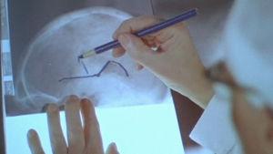 Professori piirtää aivokuvaan leikattavan kohdan.