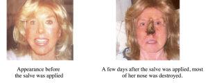 Mustan salvan aiheuttamaa ihovauriota naisen nenässä.