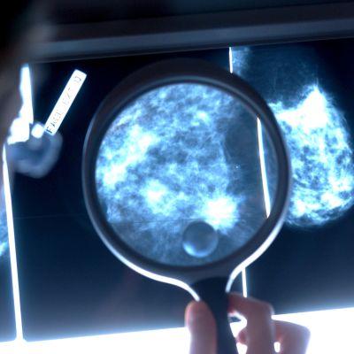 Bröstcancer