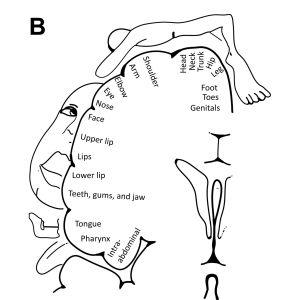 Piirros havainnollistaa, miten aivokuori muuttuu käden amputoinnin jälkeen.