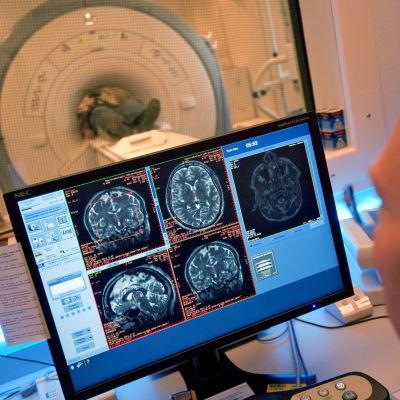 Läkare följer med patientens hjärna under datortomografin.