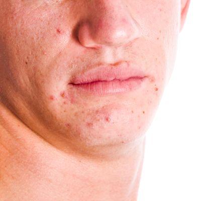 bild på en ung man med akne. Man ser bara kinder, näsa och haka, inte ögonen