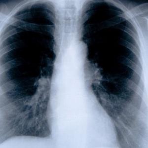 Datortomografibild av bröstkorg och bröst.