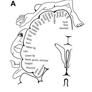 aivoalueiden yläpuolelle on piirretty siellä käsiteltävän ihoalueen kuva