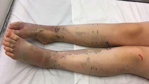 Två ben med blånader efter ormbett.