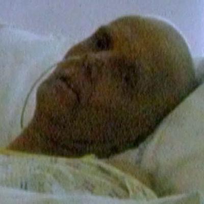 Suddig bild av en man som ligger i en sjukhussäng.
