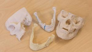 3D printad skalle