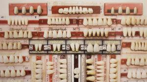 Del av foto, taget av Aja Lund, som visar en tandsamling.