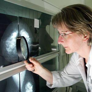 Mammografiundersökning i Berlin 2007