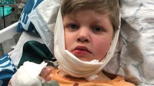En pojke med tårar i ögonen och bandage på huvudet ser in i kameran.