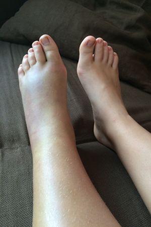 Fot som svällt upp på grund av ormbett.