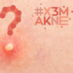 Närbild på finne med frågetecken och #x3makne logo.