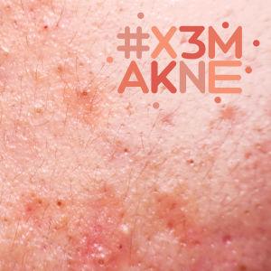 närbild på aknehud med #x3makne logo