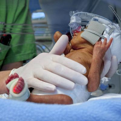 En sköterska tar hand om en för tidigt född baby.