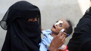 En jemenitisk kvinna med ett undernärt barn i famnen väntar på mathjälp i Hodeidah den 30.5.