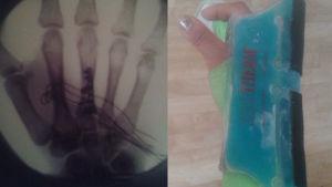 röntgenbild på mellanhandsben