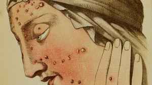 Illustration av smittkoppor.