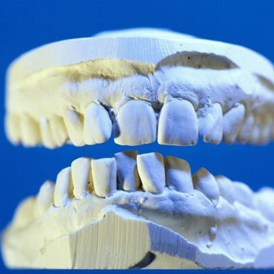 Den som behöver tandproteser har många alternativ att välja mellan. Bild: YLE/Goodshoot.com/Ludovic Di Orio