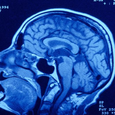 Röntgenbild på en hjärna.