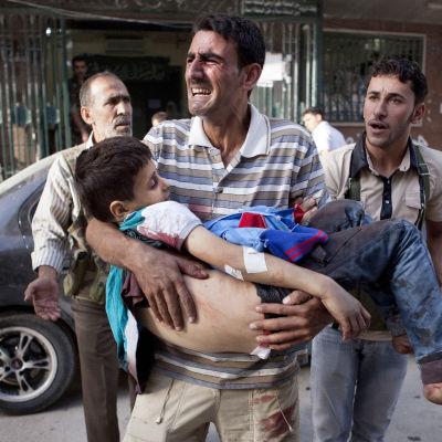 Amnesty anklagar Ryssland för att ha dödats hundraals civila. En far bär sin skadade son utanför ett sjukhus i Aleppo