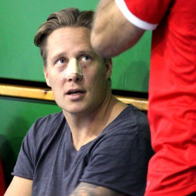 Andreas Rönnberg med bruten näsa.