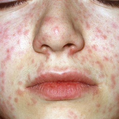 En flicka med mässlingsutslag i ansiktet.
