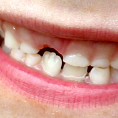 Lapsen suu